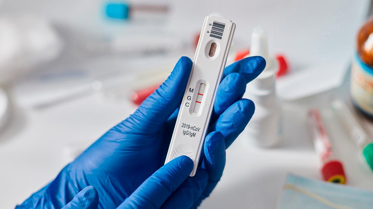 В Брянской области за сутки коронавирус выявили у 151 человека