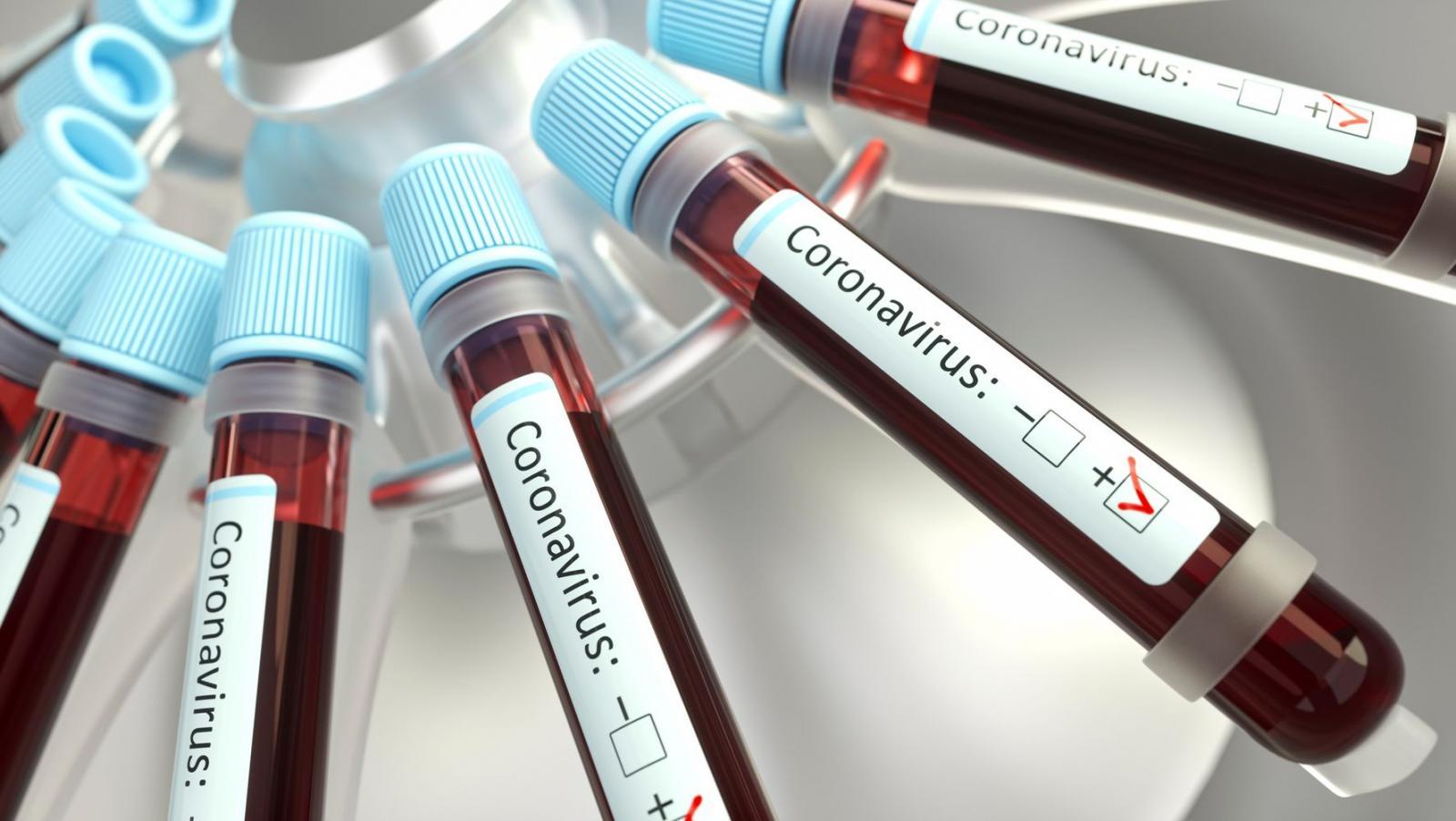 В Брянской области за сутки коронавирус выявили у 254 человек