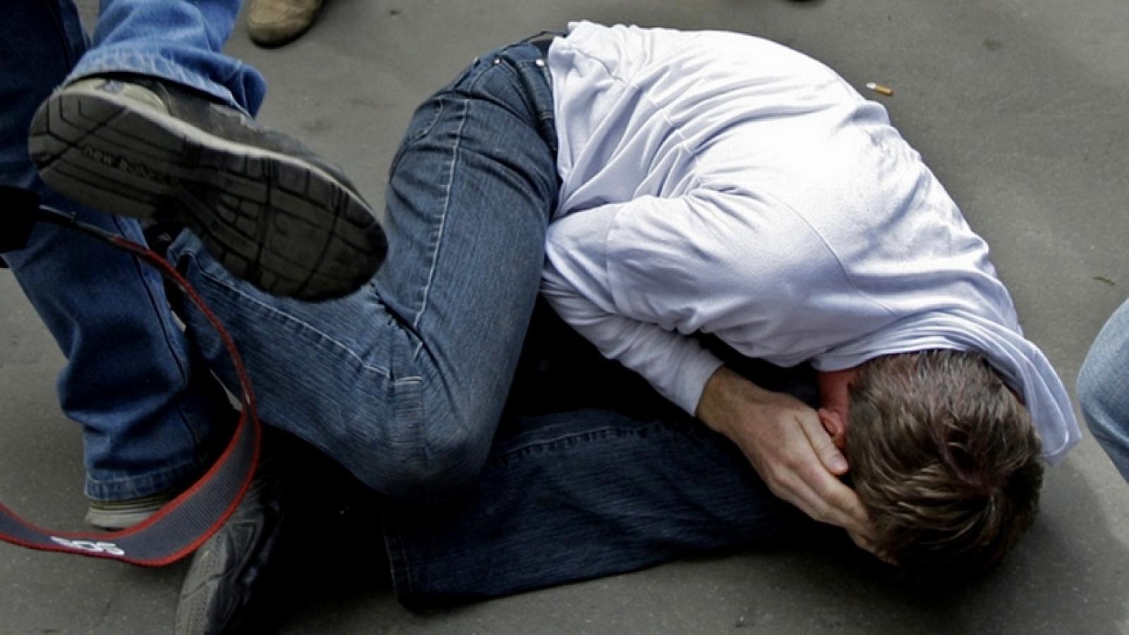 Банда пьяных брянцев сломала ребра жителю Орла