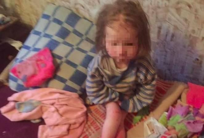 Приемный отец истощенной девочки из Брянска прошел полиграф