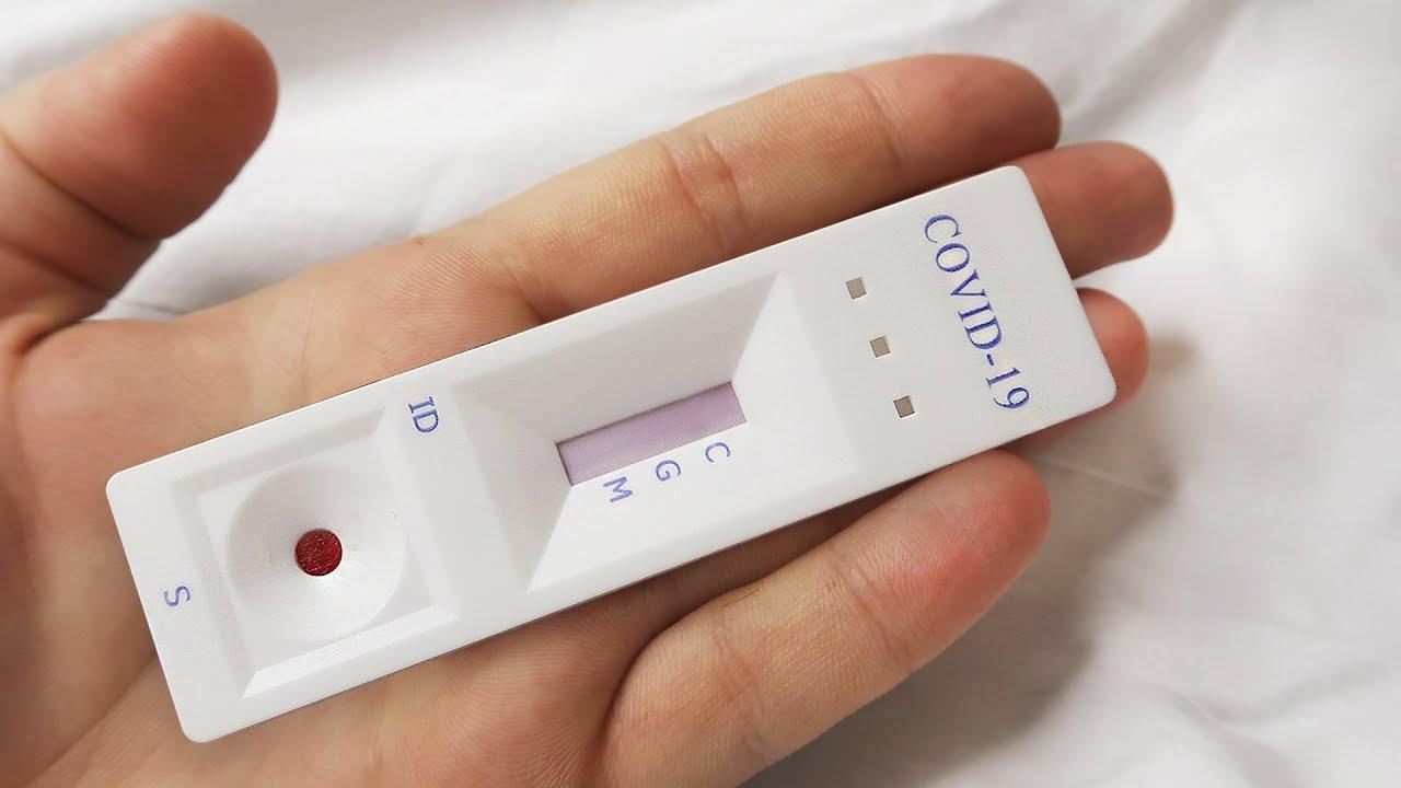 В Брянской области за сутки провели 1603 теста на COVID-19