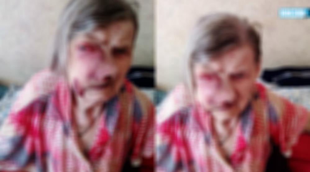 «Итак скоро умрёт»: врачи отказываются лечитьпожилую пациентку