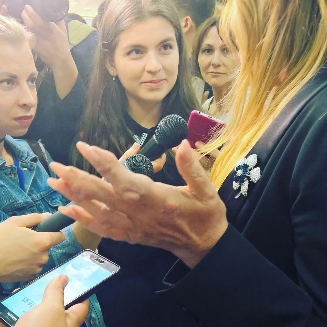 Юлия Началова показала руки: подагра изуродовала ихпосле неудачной пластики груди