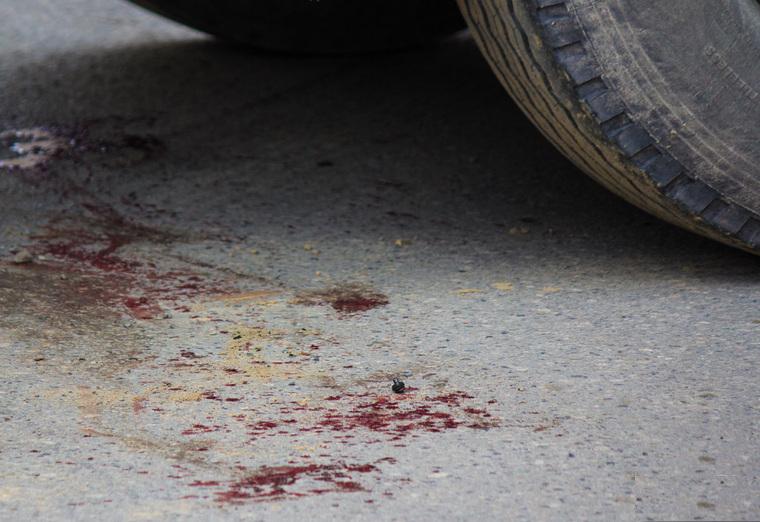 Накануне в Брянске сбили сразу трех женщин, одной стесали лицо